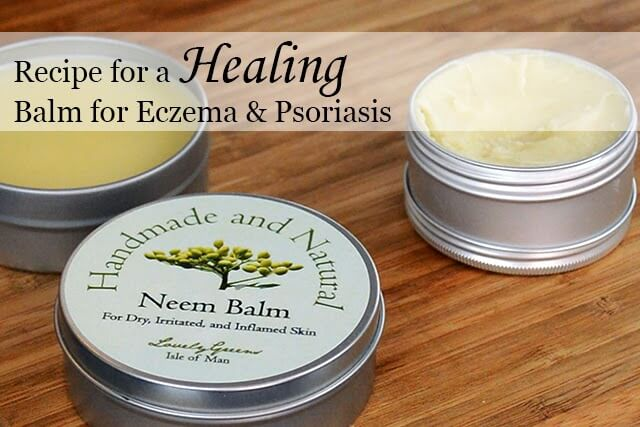 Skincare recipe for making a healing balm for Eczema & Psoriasis - all natural! #beauty