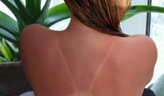 How to use Aloe Vera to treat Sunburns
