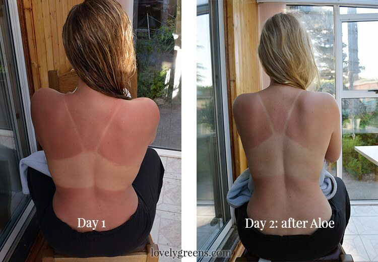 How to use Aloe Vera to treat Sunburns